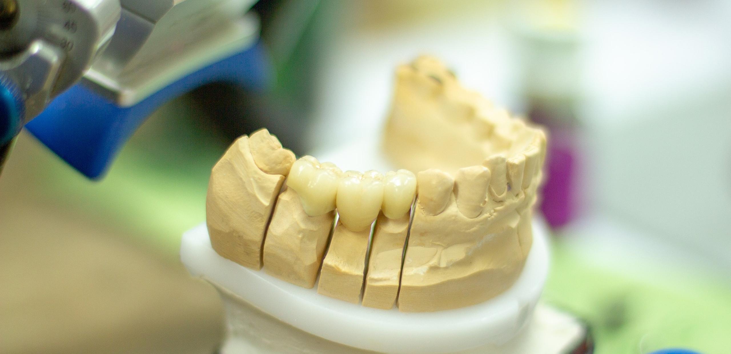 Zahnersatz Gebissabdruck